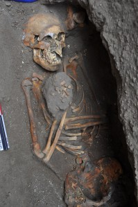 skeleton 16th c Peru ovarian tumor